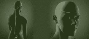 Reed Procedure, Omega Procedure, and 4-Lead Procedure for Migraines Illustration