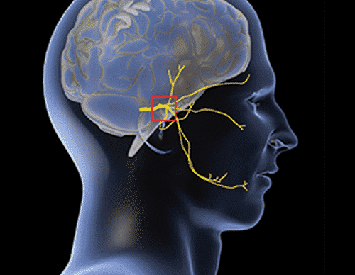 Reed Migraine Centers FAQs - The Reed Procedure ® & The Omega Procedure ® Migraine Treatment